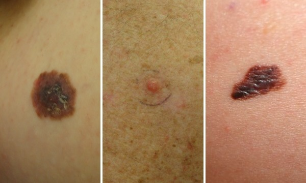 Here are three different examples of melanoma.